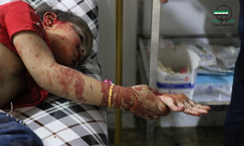 طفلة مصابة جراء القصف في مدينة دوما - 11 تموز 2016 (شبكة الثورة السورية)