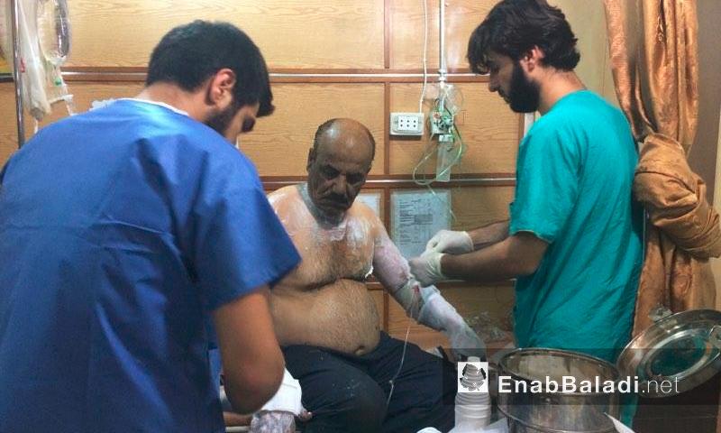 مصاب بحروق يتلقى العلاج داخل مشفى القدس في حلب - الأحد 14 آب (عنب بلدي)