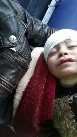 طفل جريح إثر انقلاب الحافلة التي تقل مهجري خان الشيح إلى إدلب - 29 تشرين الثاني 2016 (عنب بلدي)