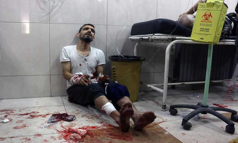 أحد الجرحى في مشافي مدينة حلب الميدانية_أيلول 2016_(انترنت)