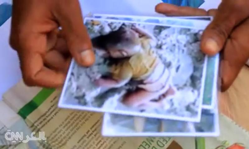 صورة للطفل محمد شيهات يحملها والده (شبكة CNN)
