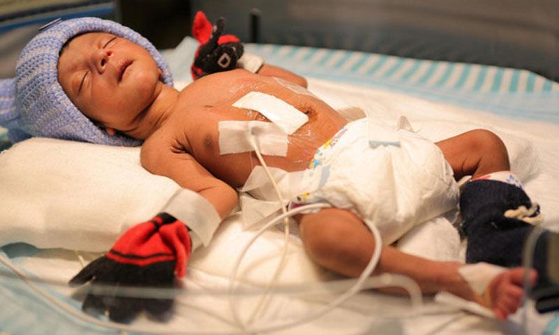 نجاح عملية استئصال لطفل ولد بأربعة أرجل - انترنت