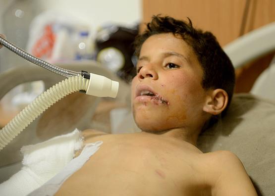 عبد العظيم جاويد- طفل سوري- مشفى كلس- تركيا (الأناضول)