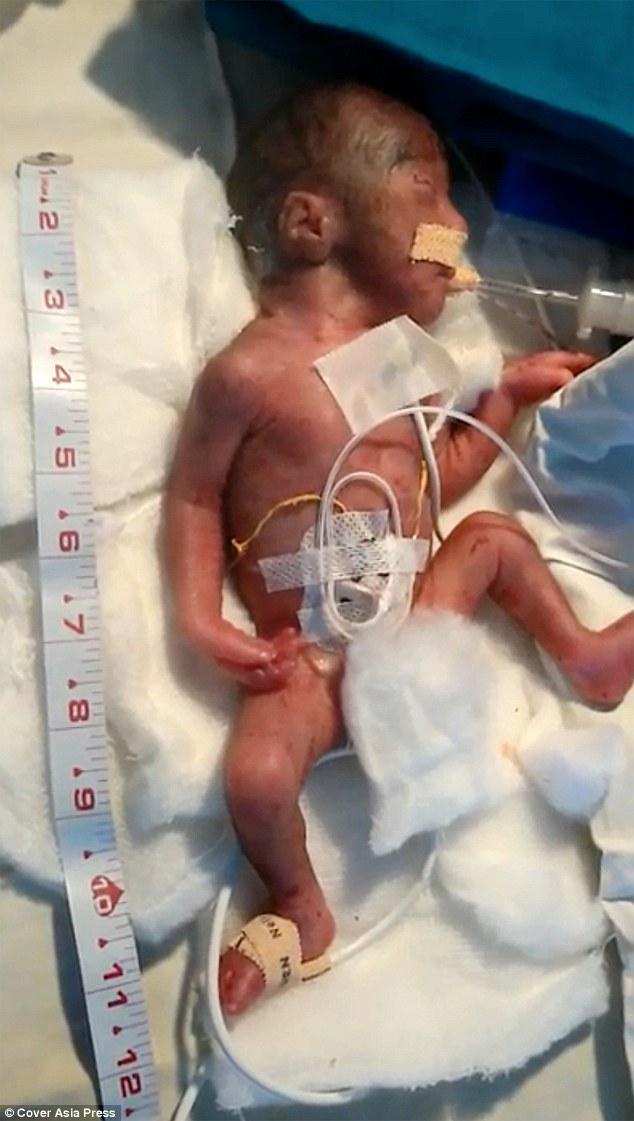 جنين هندي بعمر أسبوعين، ينجو من عملية جراحة قلبية، الأربعاء 17 أيار 2017 (ديلي ميل)
