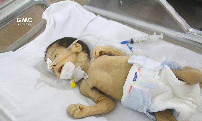 الطفل عبيدة الذي توفي في الغوطة الشرقية بسبب سوء التغذية - 21 تشرين الأول - (مركز الغوطة الإعلامي)