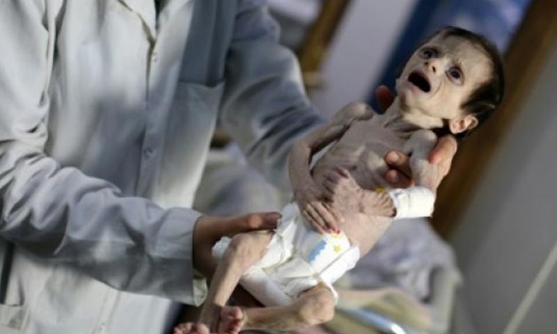 طفل يعاني من سوء تغذية حاد في الغوطة - 21 تشرين الأول 2017 (AFP)