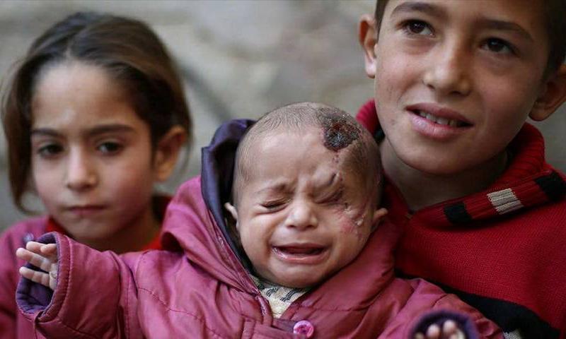 الطفل كريم وسط إخوته في الغوطة الشرقية - كانون الأول 2017 (ناشطون)