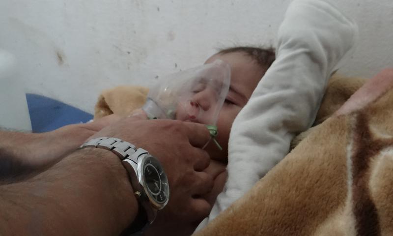 طفل مصاب بغاز الكلور في سراقب بمدينة إدلب- آب 2016( الأناضول)