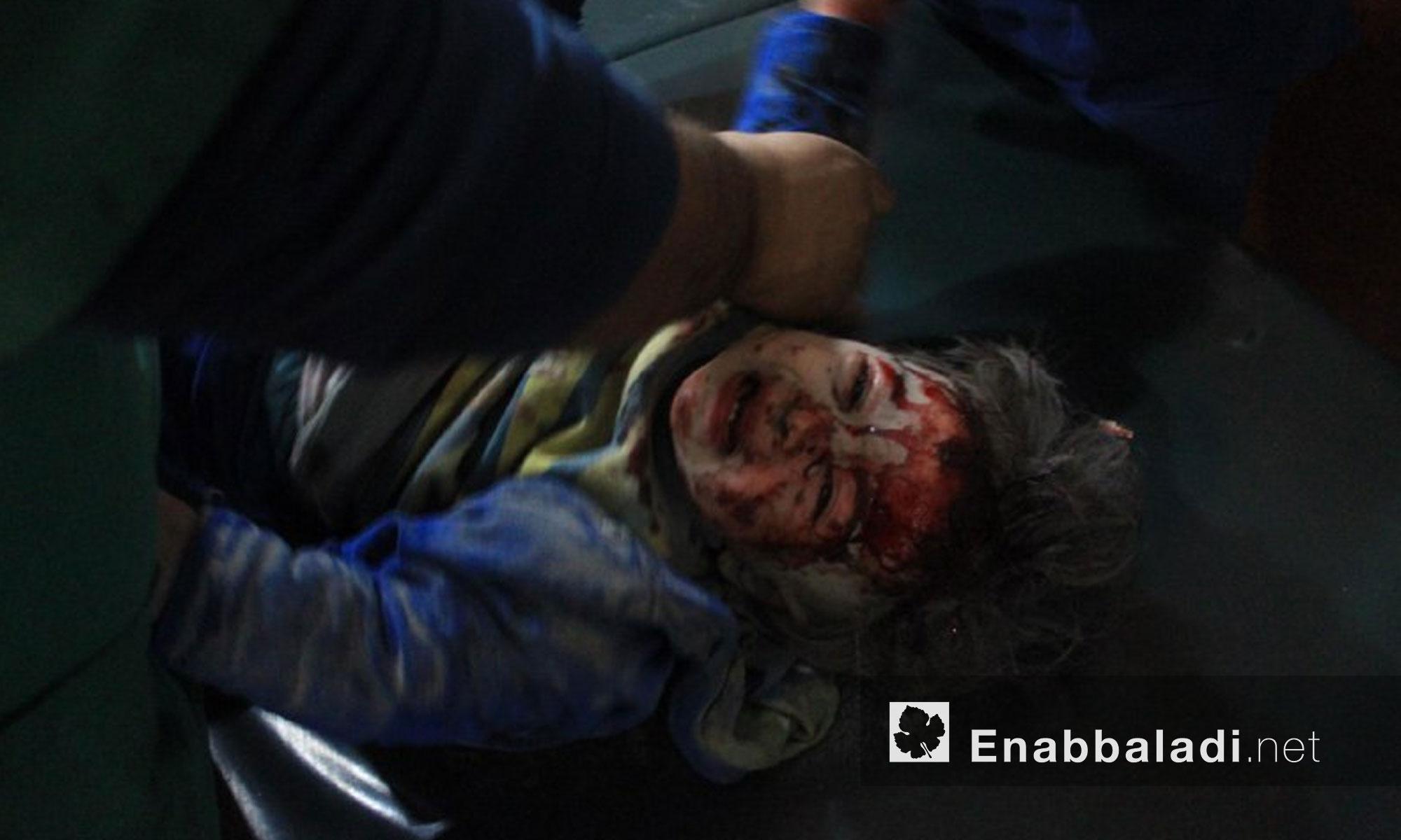 أطفال جرحى جراء القصف على بلدة حمورية في الغوطة الشرقية - 9 كانون الثاني 2018 (عنب بلدي)