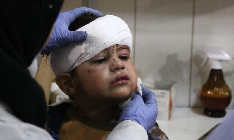 طفل جريح جراء القصف الجوي الذي طال مناطق الغوطة الشرقية- 7 شباط 2018 ( مركز الغوطة الإعلامي)