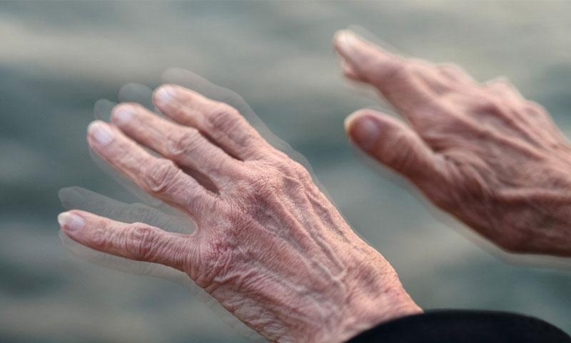 الشلل الرعاش مرض عصبي شائع بين المسنين (pinterest)
