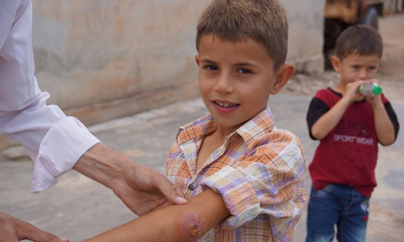 طفل مصاب بمرض الليشمانيا في حماه (عنب بلدي)