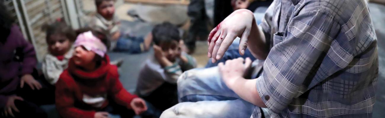 أطفال مصابون إثر القصف في سوريا - 2017 (AFP)