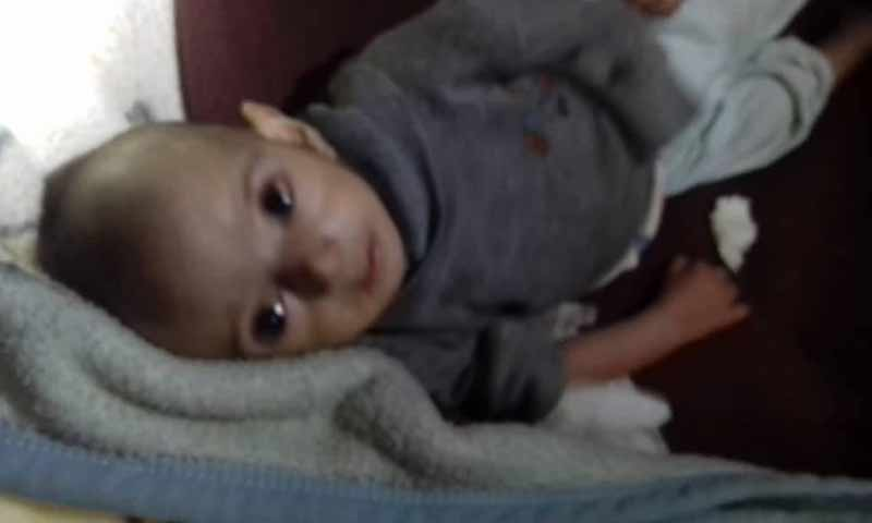 وفاة الطفلة خديجة كريم المطلق في مخيم الركبان السوري بسبب سوء حالتها الصحية 6 كانون الثاني 2018 (شبكة تدمر الأخبارية)