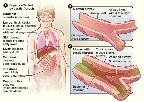 التليف الكيسي وأعراضه