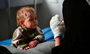 طفلة روسية تتلقى العلاج في مشفى في الحسكة (AFP)