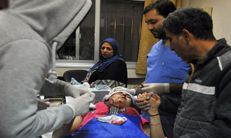 مصاب نتيجة القصف الإسرائيليى لدمشق -20 من تشرين الثاني 2019 (سانا)