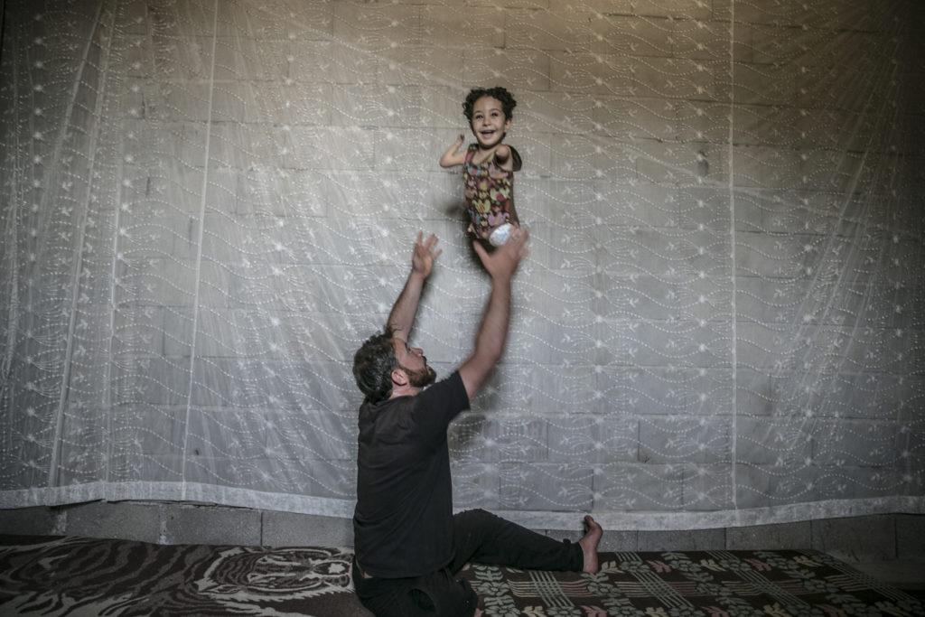 أب سوري فقد ساقه اليمنى في الحرب في سوريا واضطر إلى مواصلة حياته بالرصاصة التي أصابت ظهره وهو يداعب ابنته التي ولدت بتشوه خلقي (الأناضول)