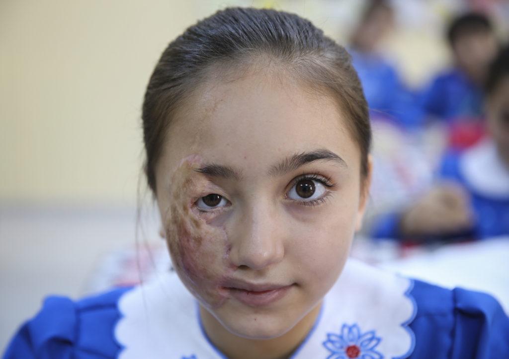 صورة لطفلة سورية تعرض لإصابة نتيجة برميل متفجر سقط بالقرب من منزلها في سوريا (الأناضول)