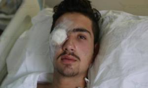 الشاب عبد الرحمن مصابًا بعينه اليمنى جراء قنصها بالرصاص المطاطي (العربي الجديد)