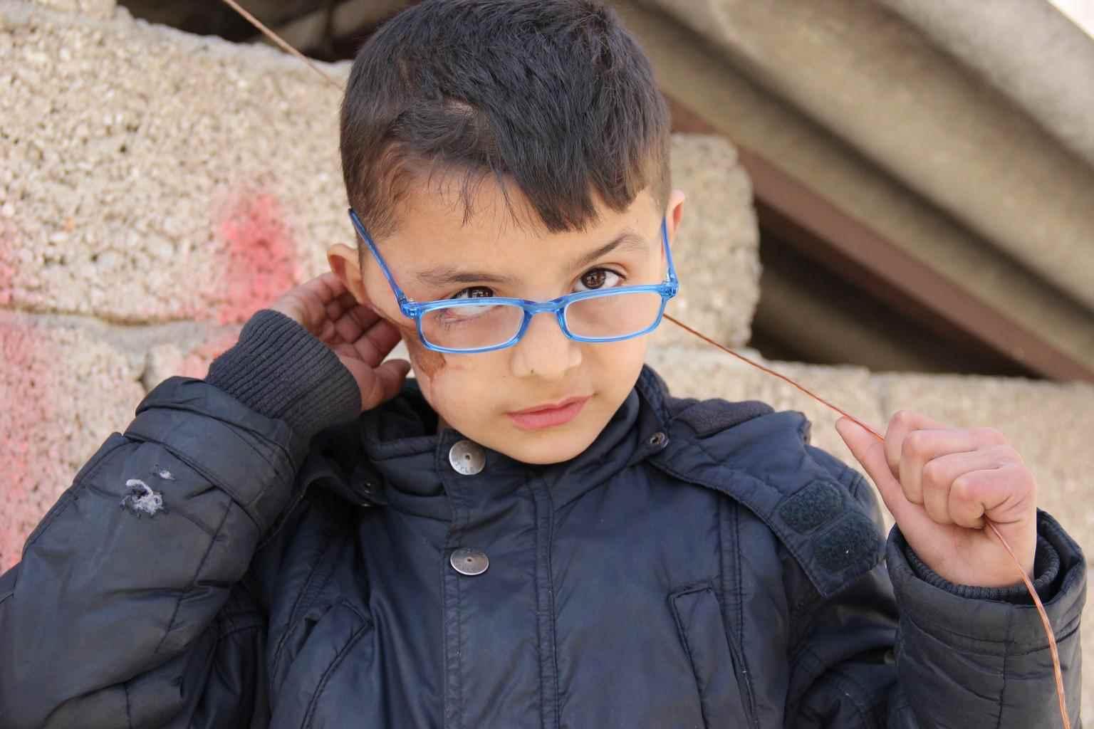 """قال صافي، البالغ من العمر تسع سنوات، """"أسقطت طائرة قنبلة برميلية على مدرستنا، أُصبت عندما أسقطت قنبلة أخرى، بشظايا في وجهي وظهري"""". وتابع صافي أن بعض أصدقائه يخافونه ولا يرغبون باللعب معه بسبب هذه الندبة في وجبهه- آذار 2014 (يونيسيف)"""