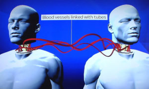 An illustration of the surgery's procedures (Sky News)