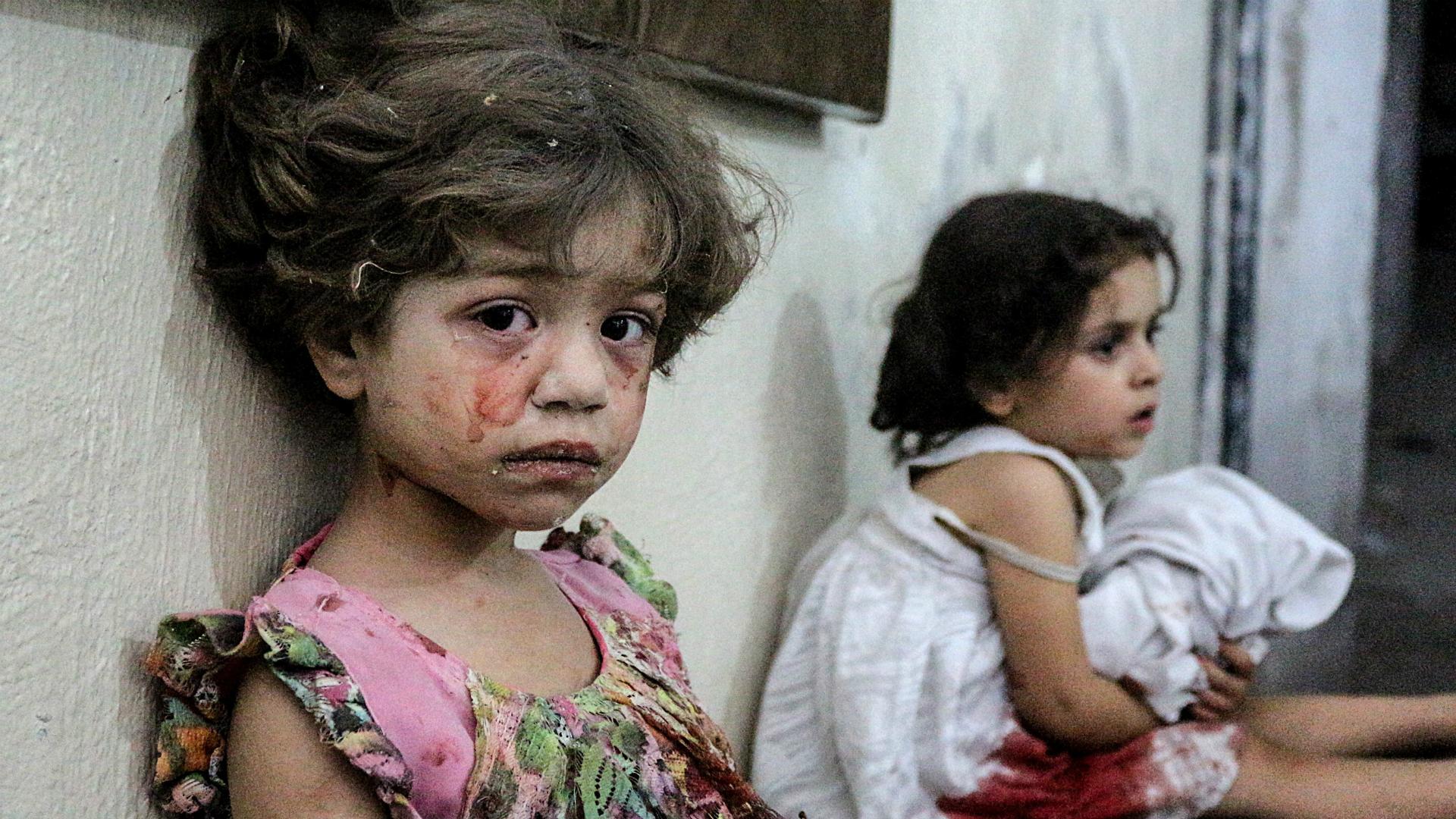 Syrian children suffering from trauma - 2017 (Anadolu Agency)