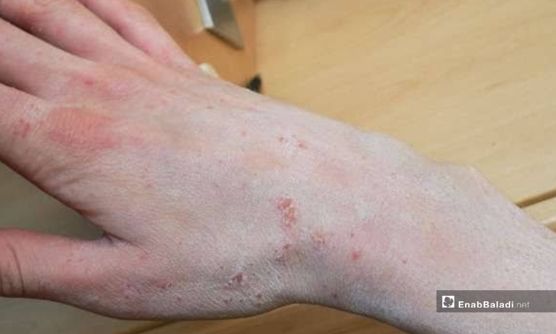 A case of scabies infection in al-Karama camp of northern rural Idlib-January 2020 (Enab Baladi)